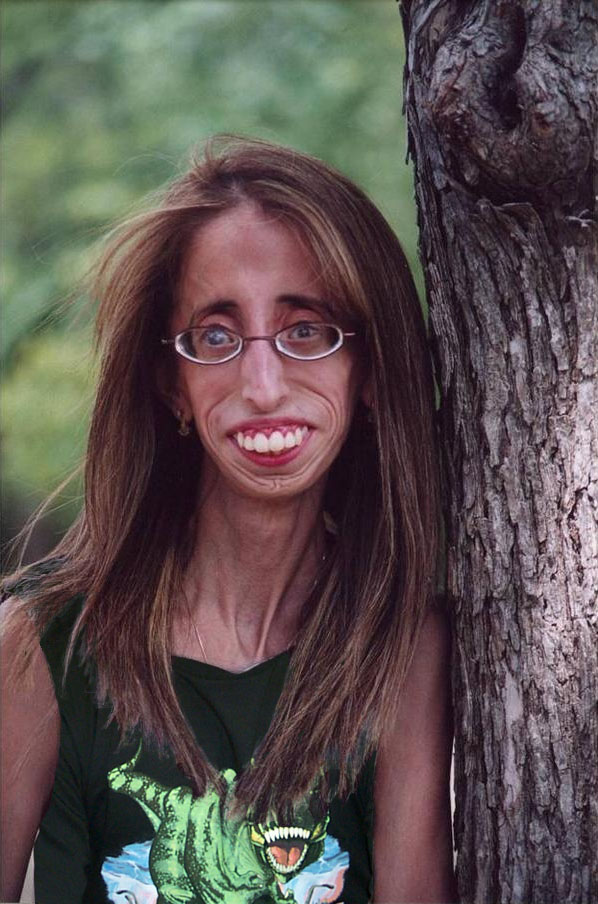 Lizzie Velasquez - Ugliest as Well as Motivational in the ...  Lizzie Velasque...